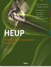 Heup chirurgie en postoperatieve revalid -orthopedische chirurgie en pos toperatieve revalidatie Meermans, Geert