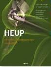 Heup -orthopedische chirurgie en pos toperatieve revalidatie Meermans, Geert