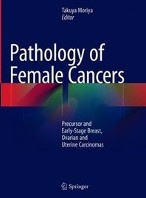 Pathology of Female Cancers -Precursor and Early-Stage Brea st, Ovarian and Uterine Carcin
