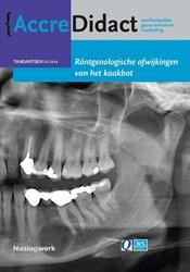 Rontgenologische afwijkingen van het kaa -naslagwerk bij de onlinecursus Waal, Isaac van der