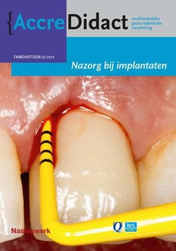 Nazorg bij implantaten -naslagwerk bij de onlinecursus Avoort, Gordon van der