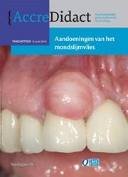 AccreDidact Aandoeningen van het mondsli -naslagwerk bij de onlinecursus Waal, Isaac van der