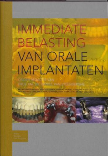 Immediate belasting van orale implantate