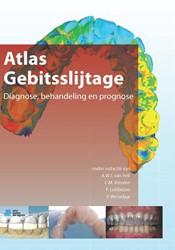 Atlas gebitsslijtage