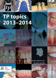 TP topics Pelt, Hans van