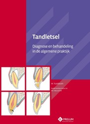 TANDLETSEL -DIAGNOSE EN BEHANDELING IN DE ALGEMENE PRAKTIJK TSUKIBOSHI, M.
